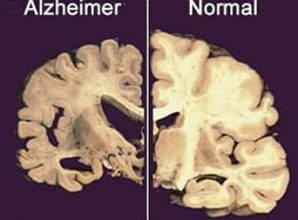 Alzheimer caused by a Fungus?