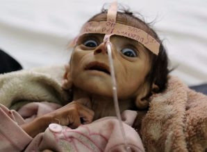 Yemen is humanitarian catastrophe. U.S. officials don't want you to know why