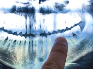 The Cause of Alzheimer's Could Be Coming From Inside Your Mouth, Study Claims